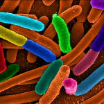 https://upload.wikimedia.org/wikipedia/commons/8/84/Diverse_e_Coli.png